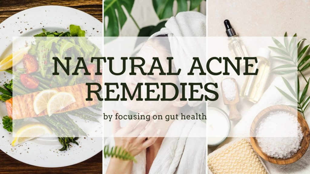 Natural acne remedies
